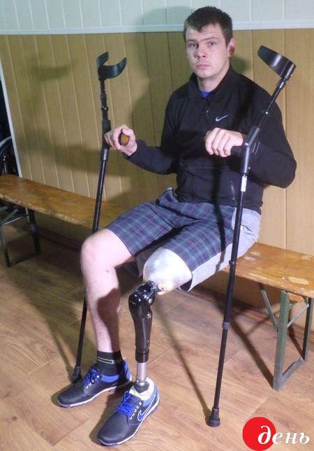 выбор говорит фотографии с протезом ноги левой места